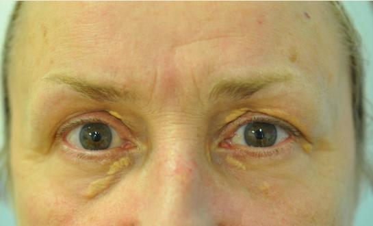 Xanthelasma Before