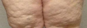 Fat Knees